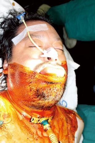 蜂窝组织炎的治疗_图2.严重蜂窝织炎(ludwig氏咽峡炎)患者气管切开